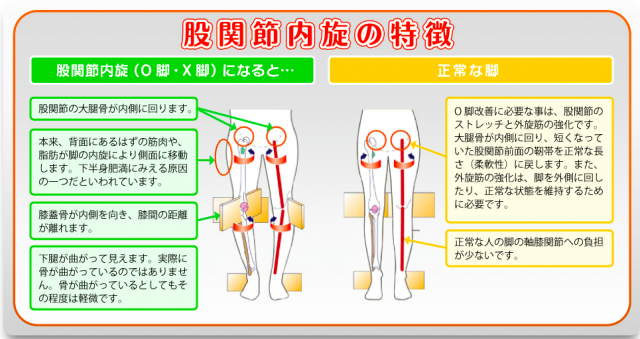 股関節内旋特徴
