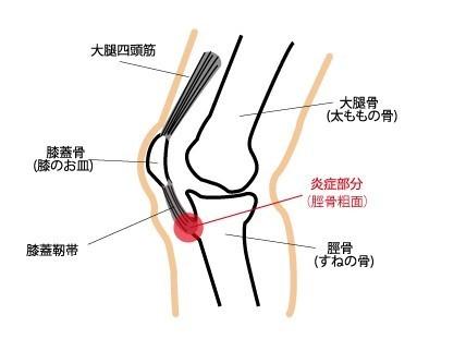 膝関節痛 膝蓋腱炎(ジャンパーズニー)