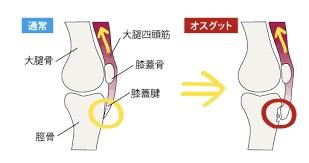 膝関節痛 オスグット