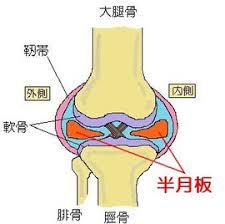 膝関節痛 半月板