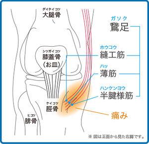 膝関節痛 鶩足炎