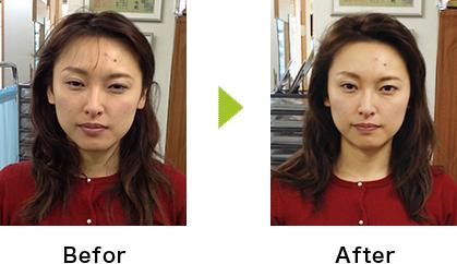 小顔整体 施術前、施術後の変化