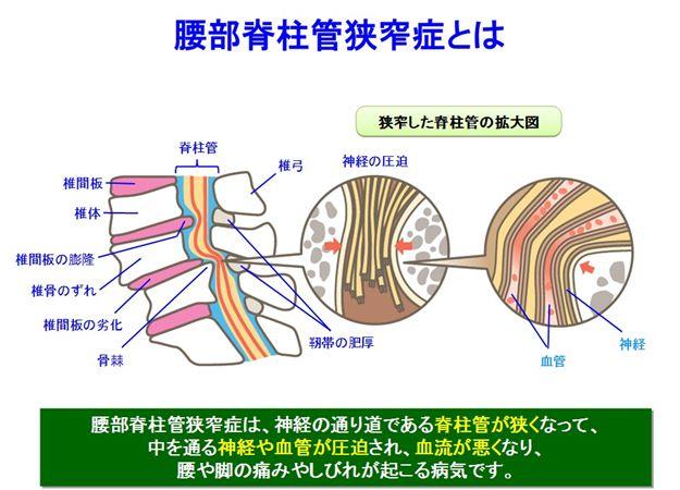 脊柱管狭窄症とは